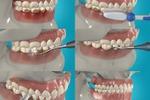 Обучающий ролик для стоматологов