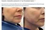 Врач-косметолог в СПб