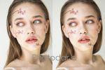 Бьюти ретушь кожи | Пластика