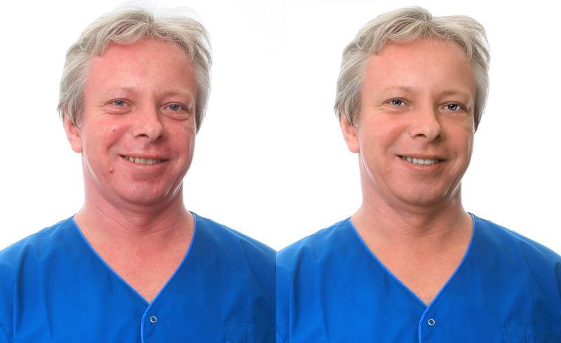 Устранение дефектов лица