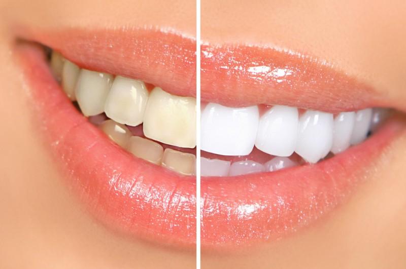Перевод на тему эстетической стоматологии с немецкого