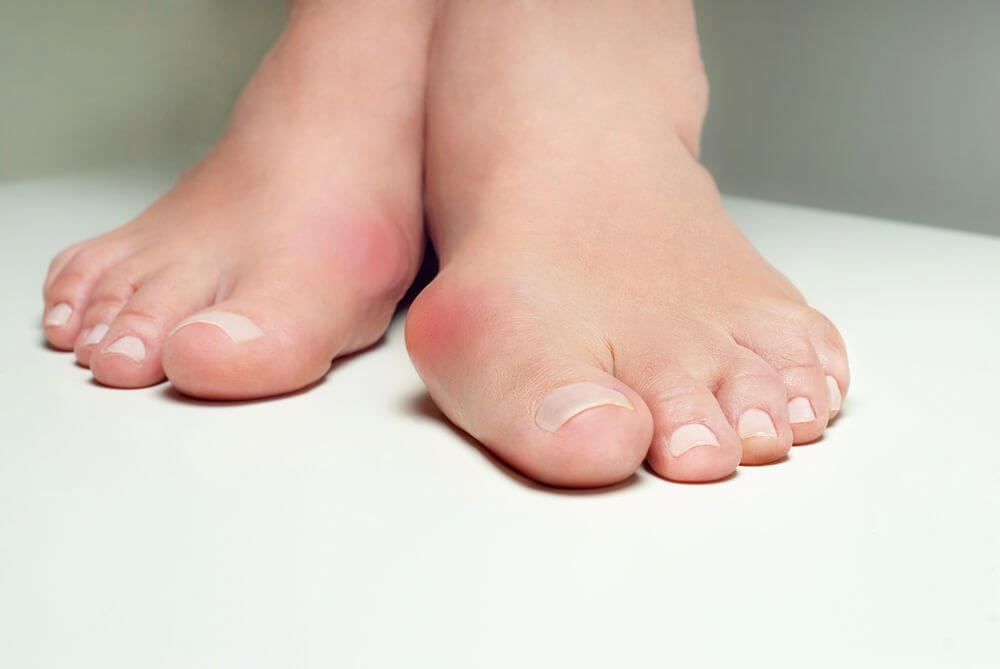 Вальгусная деформация 1 пальца стопы