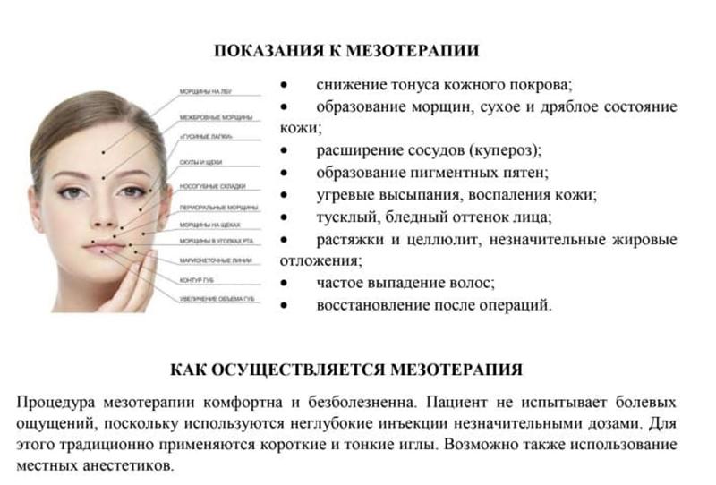 Мезотерапия: косметологическая клиника
