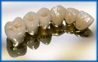 Медицина (зубные коронки из металлокерамики)