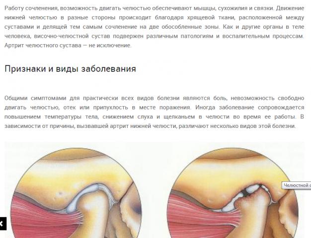 Какой крем для ног суставы помогает
