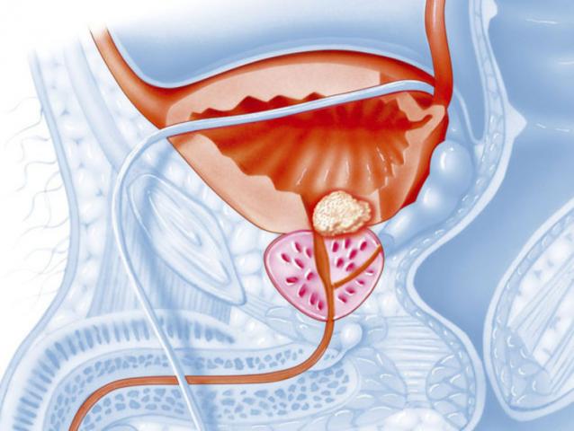 Симптомы и лечение хронического простатита